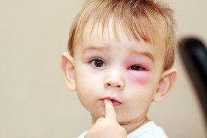 Wespenstich am Auge eines Kindes